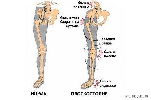 Что делать если болит колено при сгибании Причины и лечение