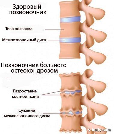 Упражнения для спины с болями