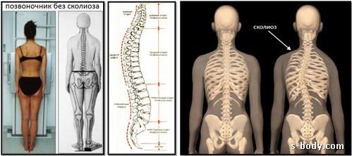 Упражнения при сколиозе позвоночника в домашних условиях, зарядка для исправления спины